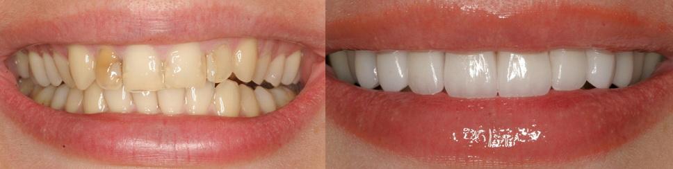виниры на зубы какие лучше